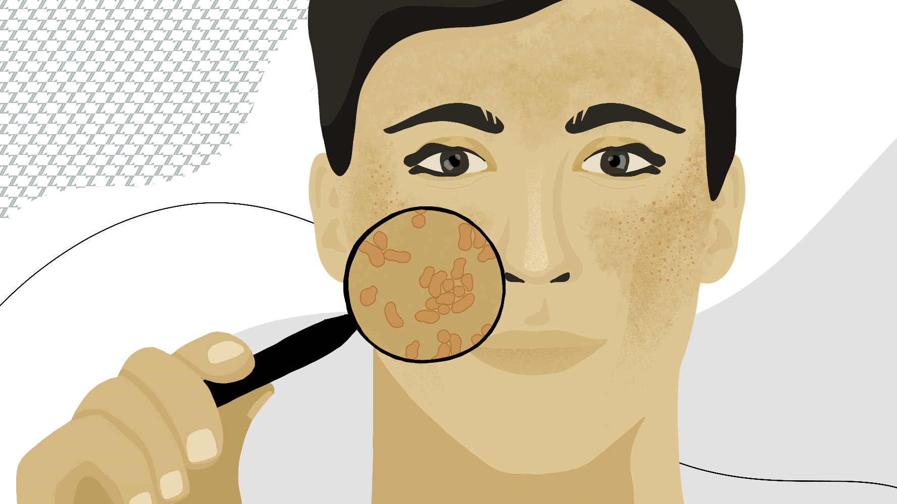 So what is fungal acne?
