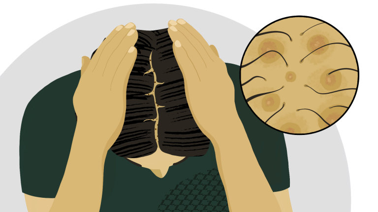 Scalp Pimples? What Causes Scalp Acne and How to Treat It