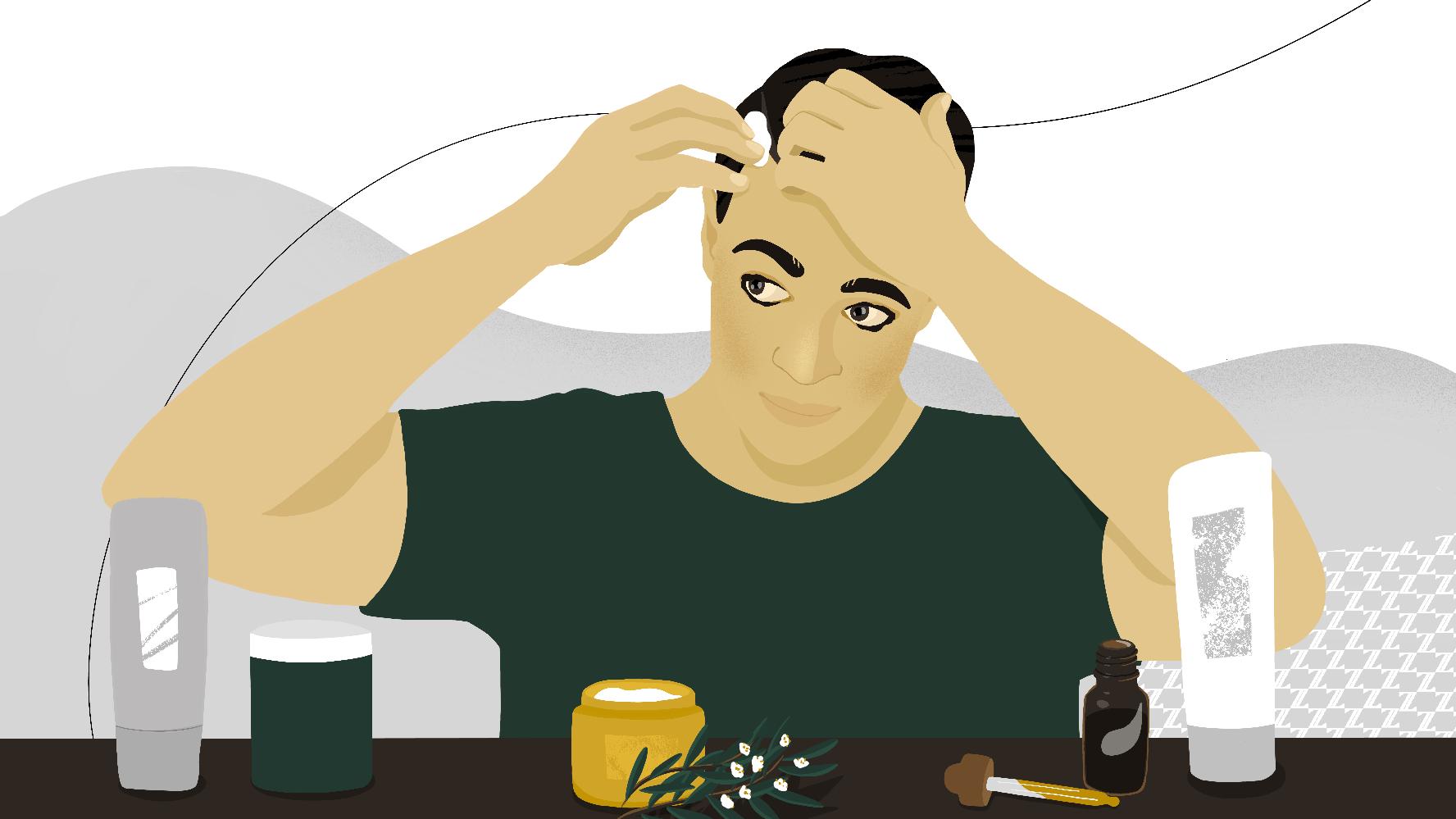scalp-acne-treatments