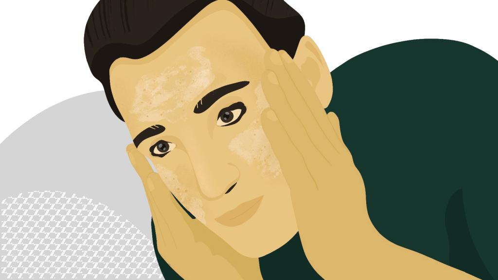 best facial cleanser seborrheic dermatitis