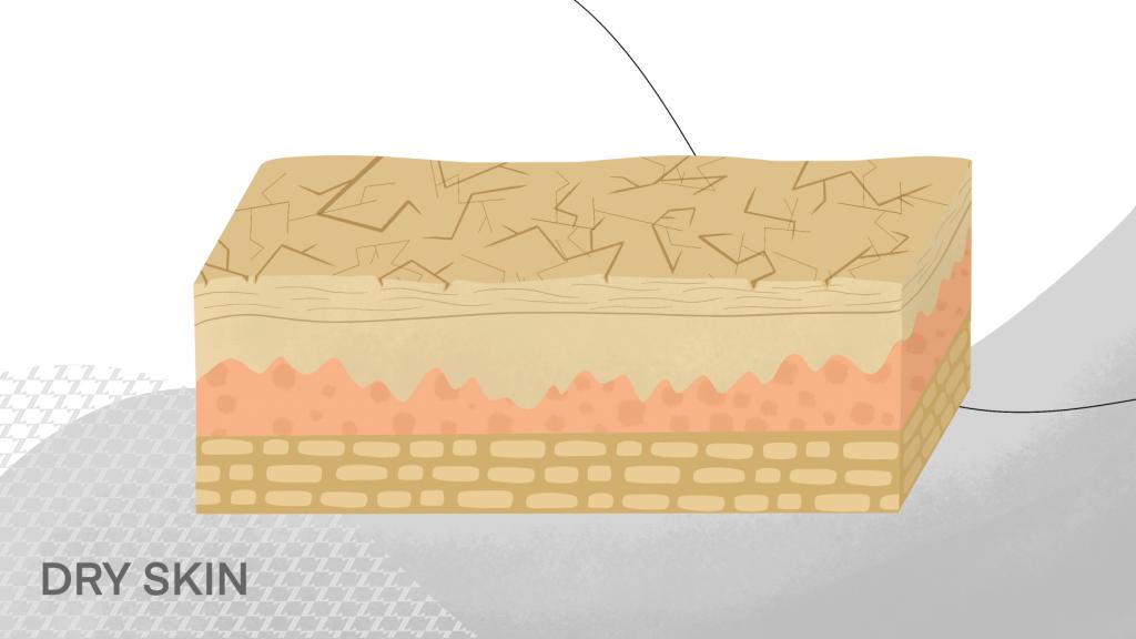 skin-care-routine-dry-skin
